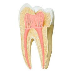 Endodoncia cáceres, endodoncia caceres, endodoncista caceres, clinica dental cacereña, dentista caceres