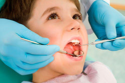 odontopediatría, odontopediatra, cáceres