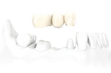 puente, dental, protesis, dientes, postizo,coronas, fundas