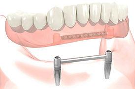 protesis implantes, protesis caceres, implantes caceres, dentadura cáceres