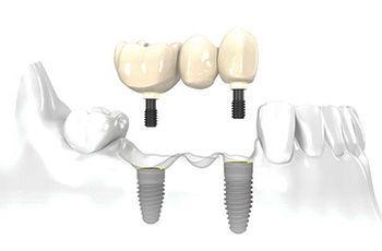 implantes cáceres, implante dental, implante caceres, clinica dental cacereña