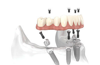 protesis implantes, implantes dentales caceres, implantes caceres, protesis, caceres
