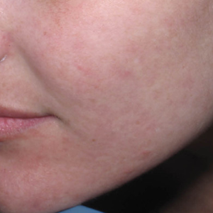 acne treatment after