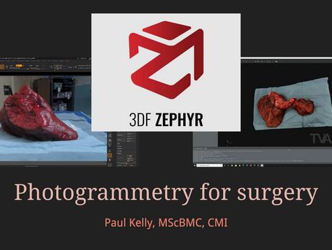 Photogrammetry for surgery talk