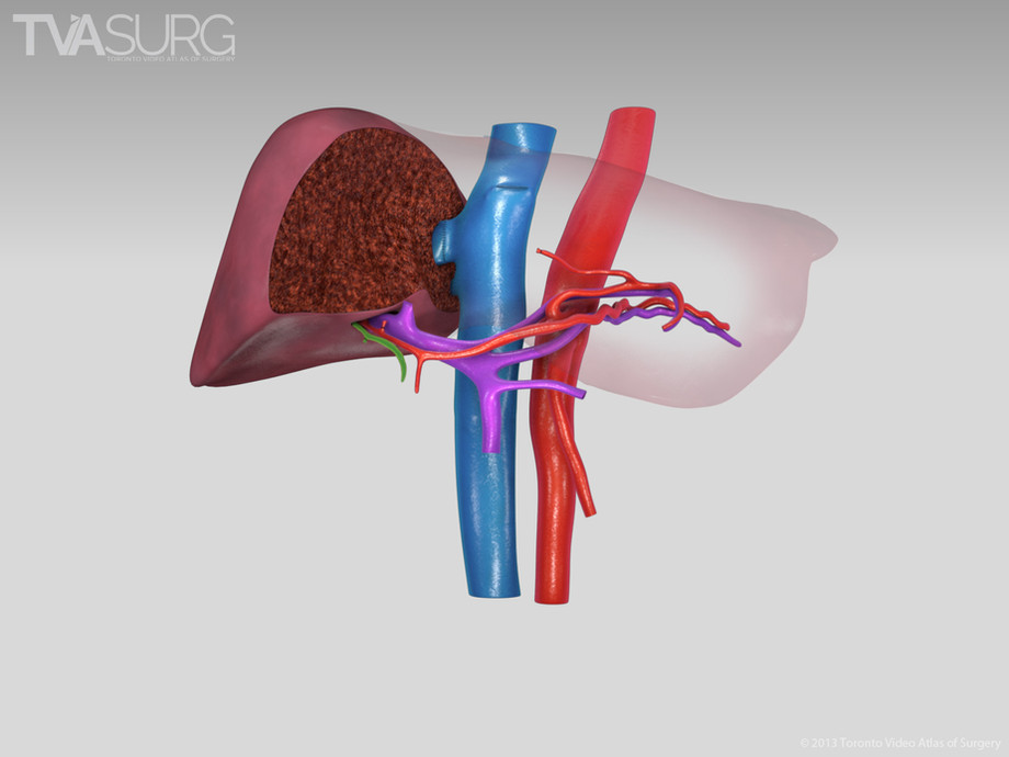 Extended left hepatectomy - resection