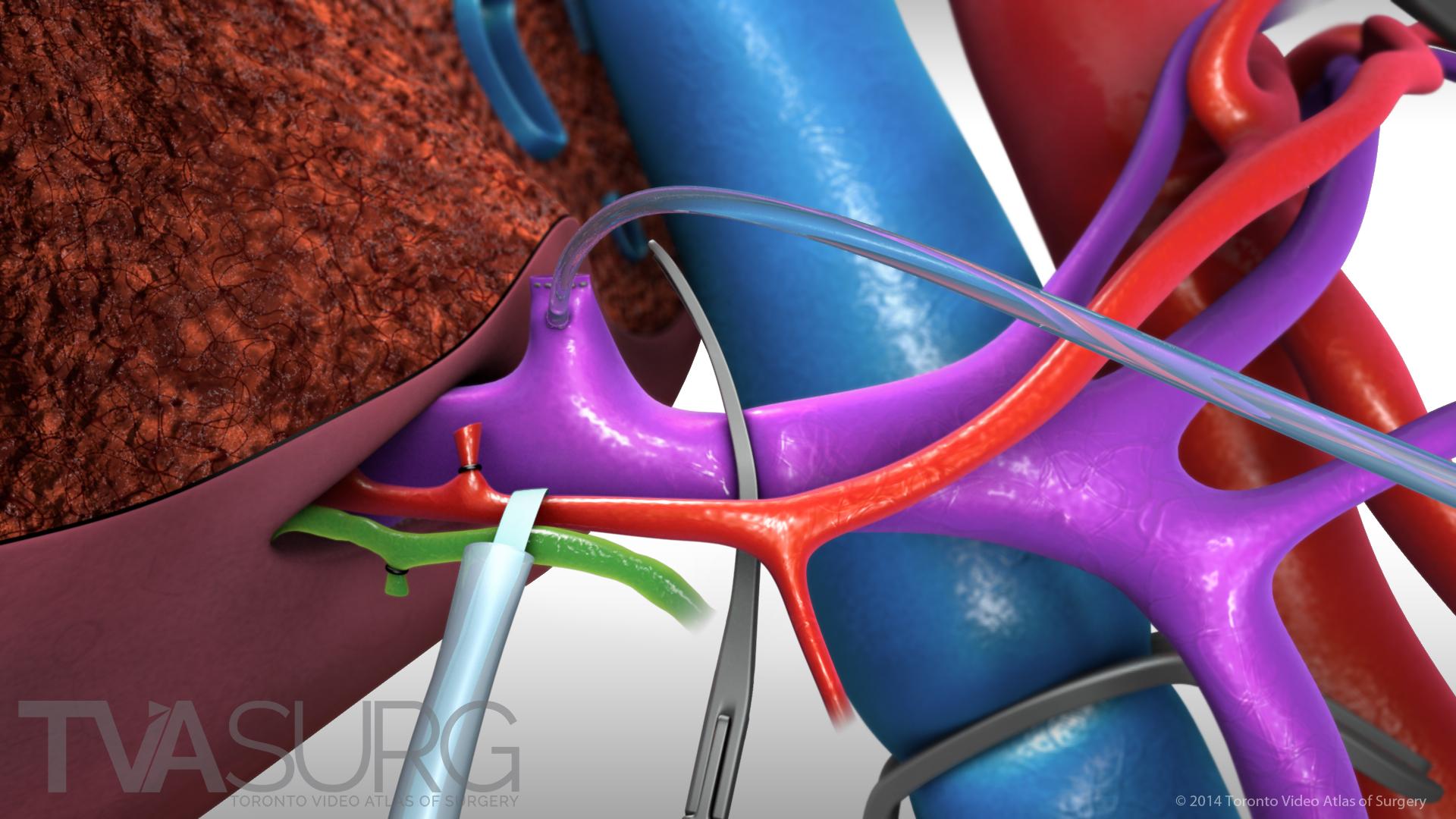 Extended Left Hepatectomy in situ setup