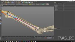 ENT_fibula_3Dprocess_NeuroVasc_03