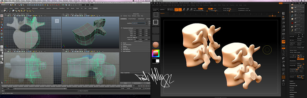 PK_LumbarDecomp_Process_anatomy_02.jpg