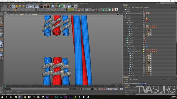 ENT_fibula_3Dprocess_Ligations_02.jpg
