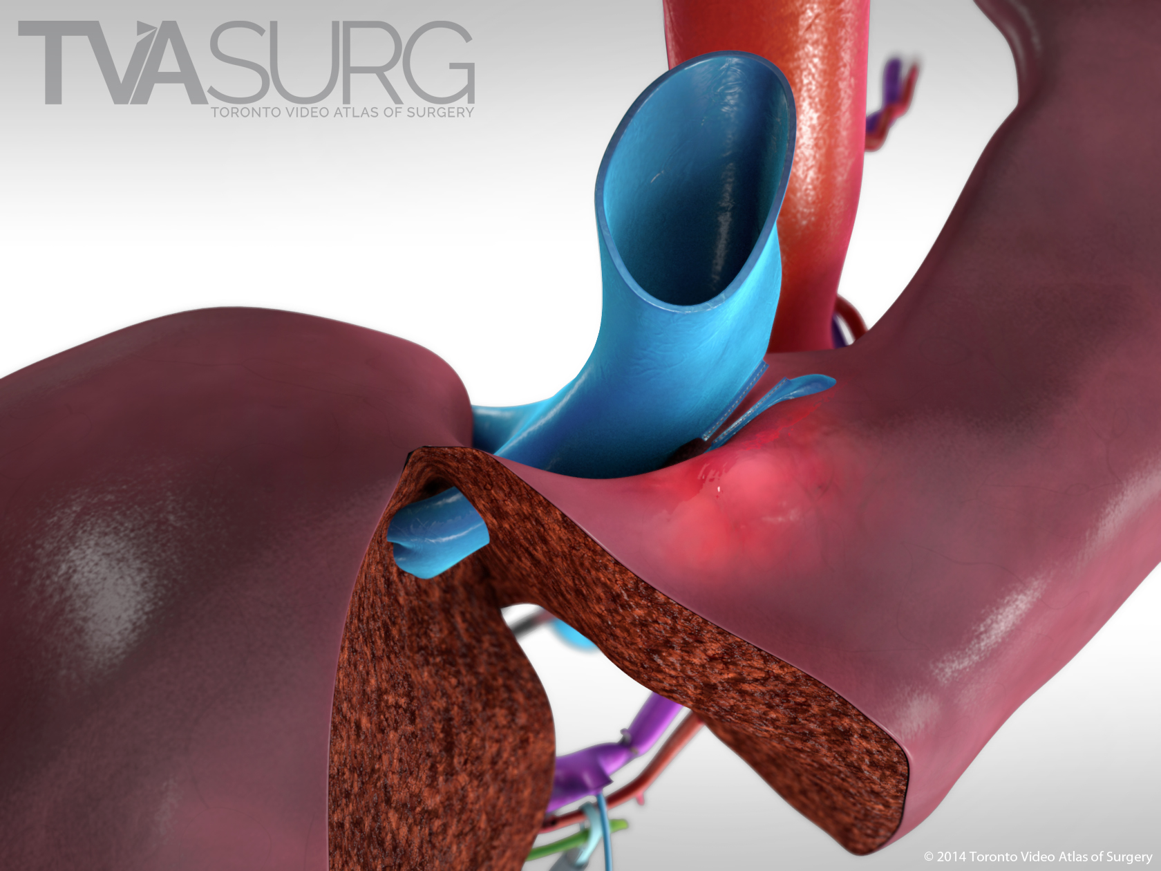 Extended Left Hepatectomy superior view