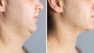 Male Fat Dissolving Treatment
