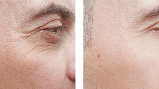 Male Anti Wrinkle Treatment