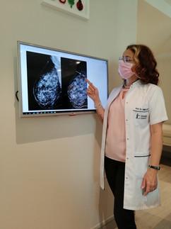 Yıllık mamografilerde erken evre meme kanseri kolaylıkla fark edilebilir