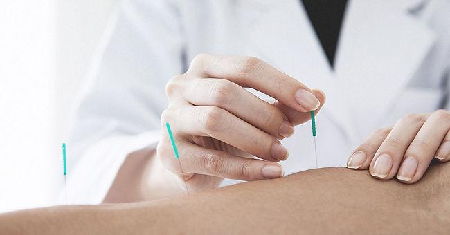 Acupunctuur Suwen