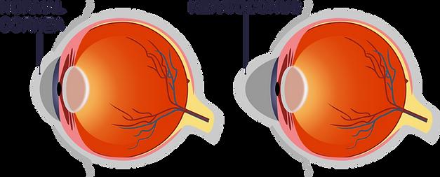 KERATOCONUS cover.png