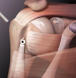 Плечо.ру-тендинит длинной головки бицепса. Артроскопический тенодез бицепса.