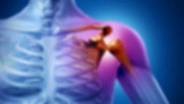 Плечо.ру-привычный вывих плеча. Артроскопия плеча при вывихе