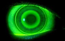 Ortho-k lens