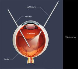 Vitrectomy