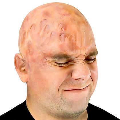 Burned Bald Cap Appliance