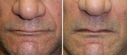 rellenos faciales foto 3