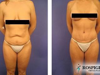 ¿Cuánto peso necesito perder antes de una abdominoplastía?