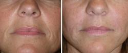 rellenos faciales foto 4