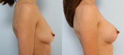 levantamiento mamario foto 21-2