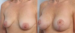levantamiento mamario foto 24-3