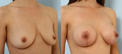 levantamiento mamario foto 21-1
