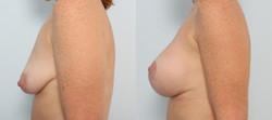 levantamiento mamario foto 24-4