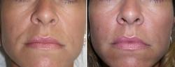rellenos faciales foto 6