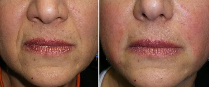 rellenos faciales foto 1