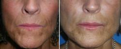 rellenos faciales foto 2