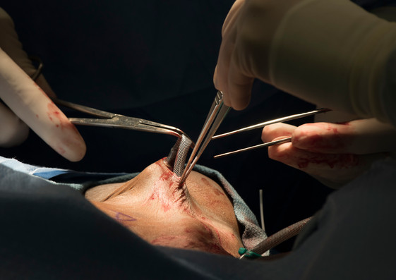 Surgical Photography
