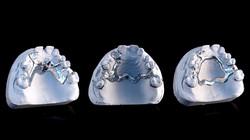 Esquelético maxilar superior