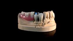 Prótesis mixta maxilar inferior