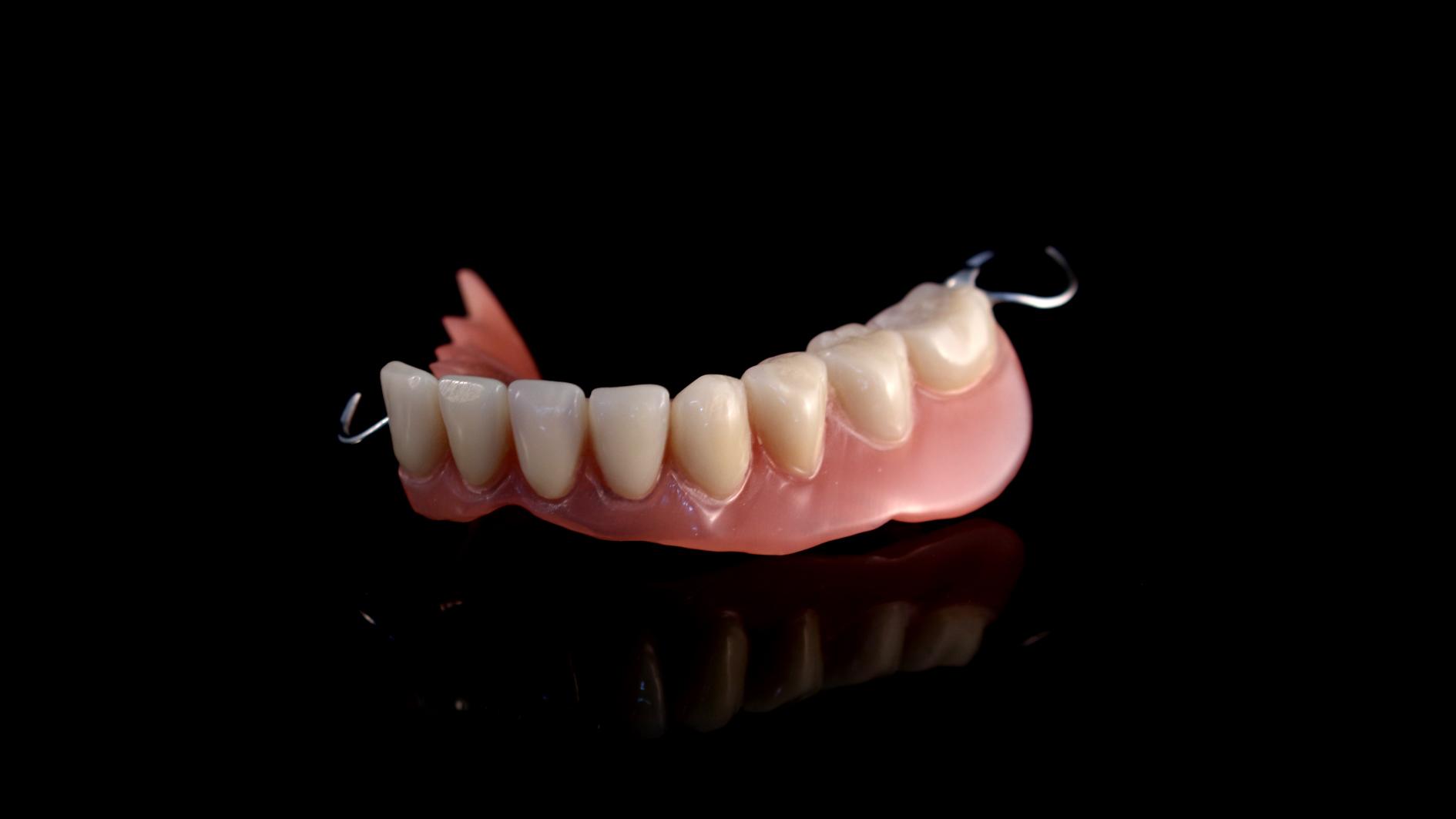 Parcial maxilar inferior