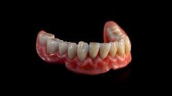 Completa maxilar inferior
