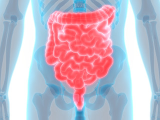 SIBO: Small Intestinal Bacterial Overgrowth