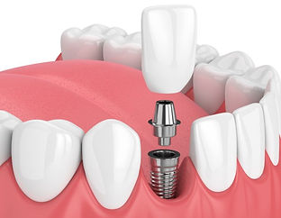 Dental-Implants-Image.jpg