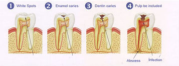 Stages of Cavity Graph