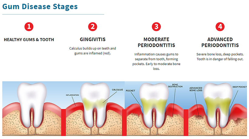 Gum Disease Graph