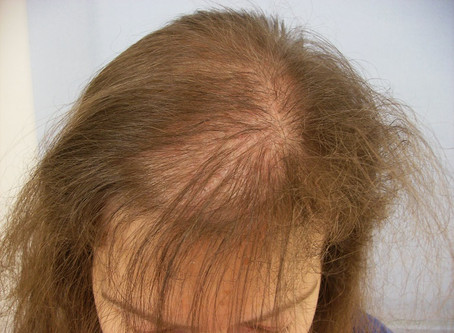 Hair loss and Hormones