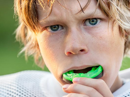 Mouth guards: Sports equipment that protects the smile