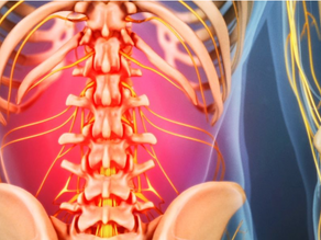 Your Back, Neck or Shoulder Pain Could Be Coming From Your Gut!