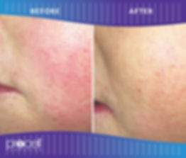 Procell Telangectases before-after20.jpg