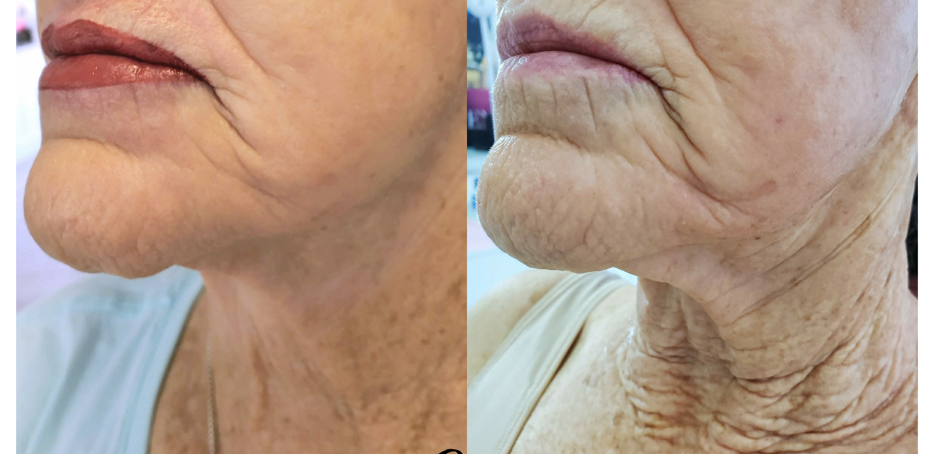 Plasma for Neck and Jowls