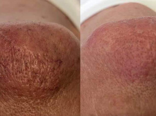 Broken Facial Capillary Treatment