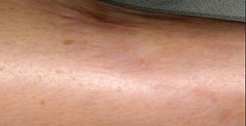Forearm Scar After.jpg
